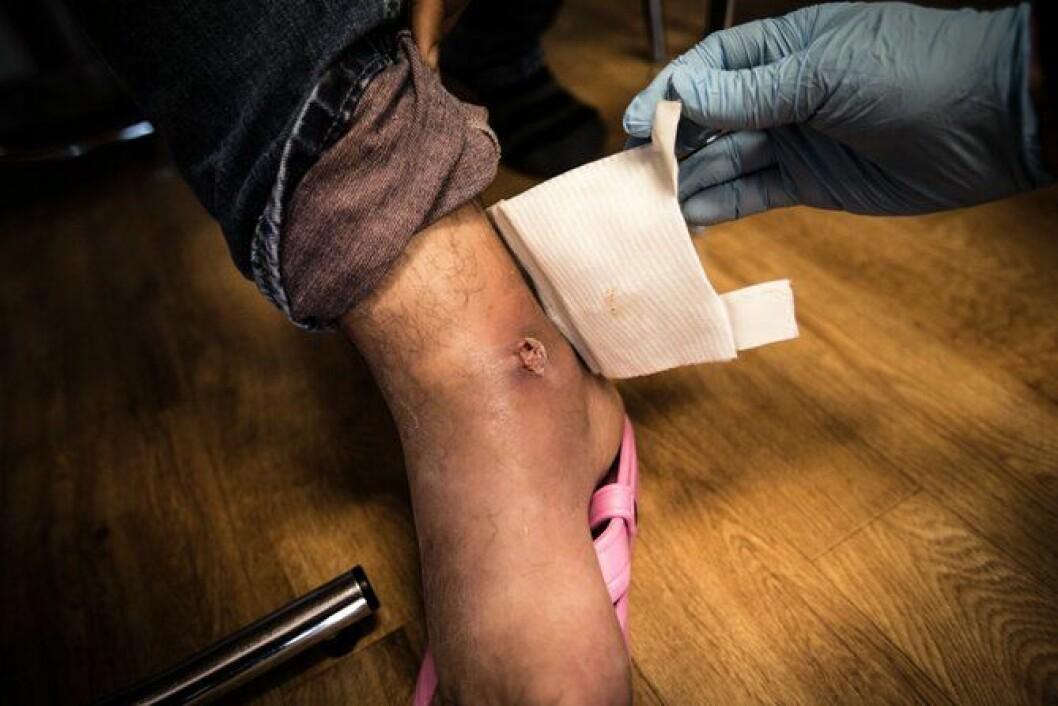 Et lite kutt kan fort utvikle seg til infiserte sår når man ikke får hjelp og er på flukt. Ftot: Ådne Sinnes