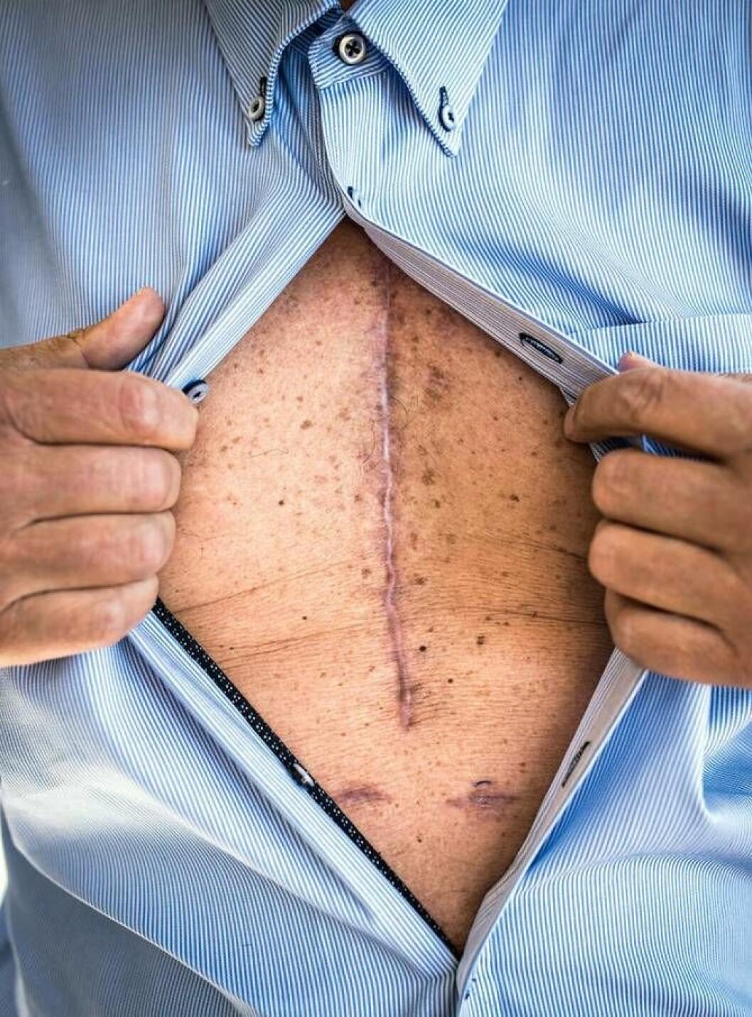 Arret på Dag Egils bryst forteller historien om sykdommen som rammet ham i sommer.