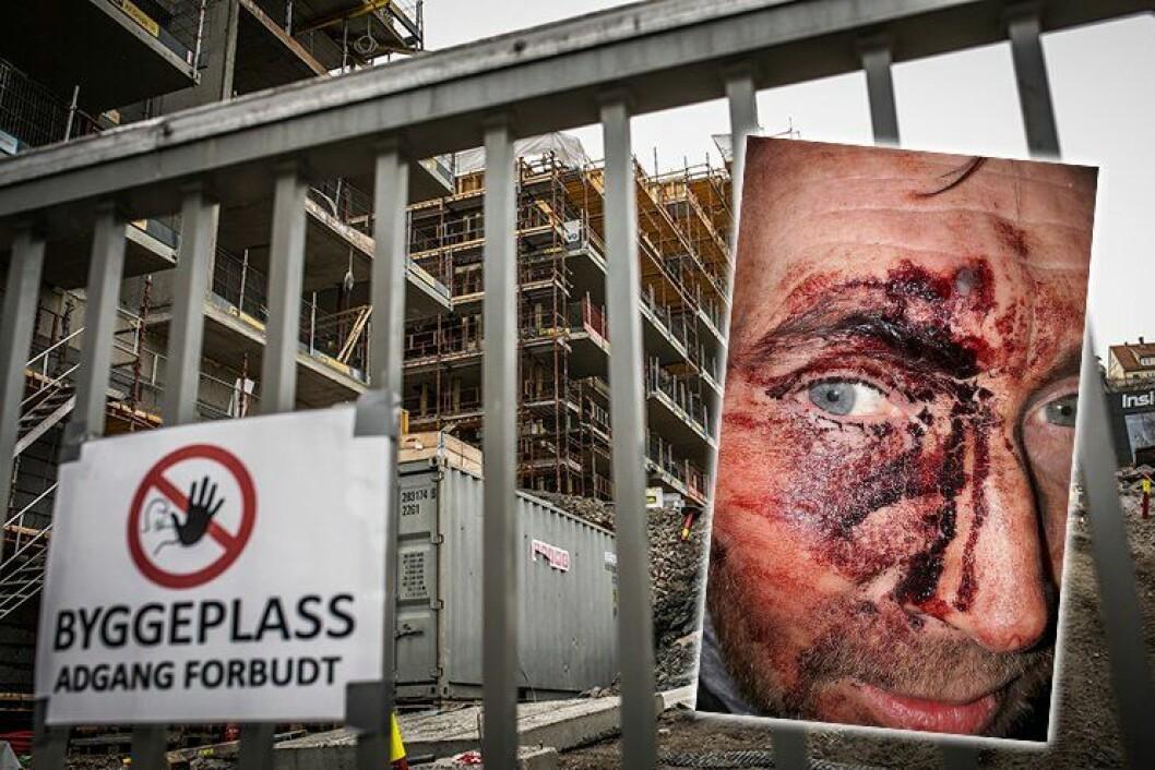 ANGREPET: Da politimannen ankom byggeplassen i Kværnerbyen i Oslo, der en innbruddsalarm hadde gått, ble han slått med en planke med spiker. FOTO: Torkjell Trædal/privat
