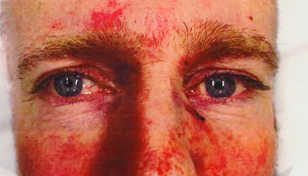 Politioverbetjent Terje Pedersen ble skambanket bare fordi han er politi.