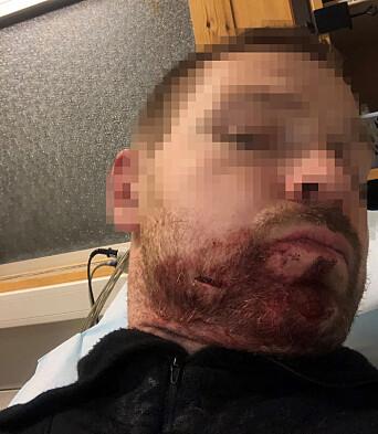 SKUTT OG KNIVSTUKKET:– Uten at jeg så det hadde han plutselig en slaktekniv som stakk ut fra knyttneven som han slo meg med i ansiktet uten forvarsel, forteller polititjenestemannen.