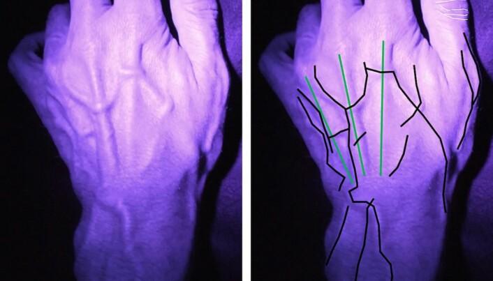 RETTESNORER: – Det er utrolig mye informasjon i en hånd, sier Sue Black. Form og størrelse på både blodårer, forskning som fingeravtrykk.